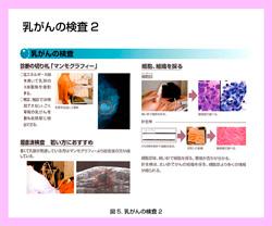 20131015_第二回乳がん5